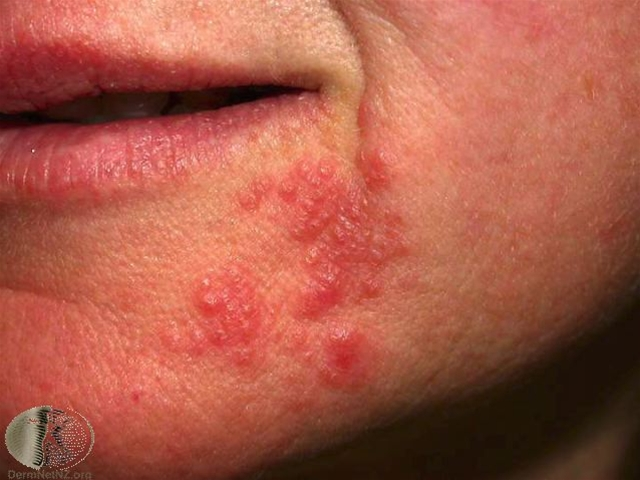Eczema on Lips - Pictures, Causes, Contagious, Treatment ...
