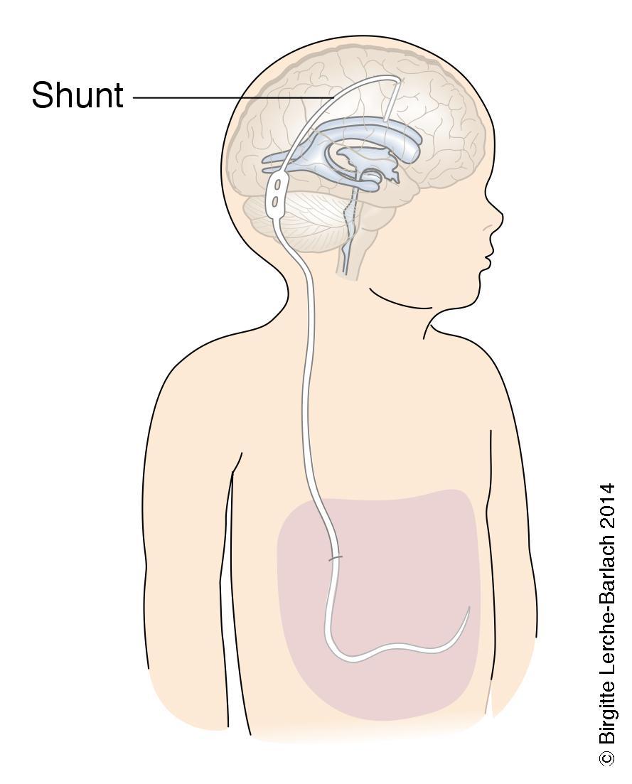 shunt i hjernen
