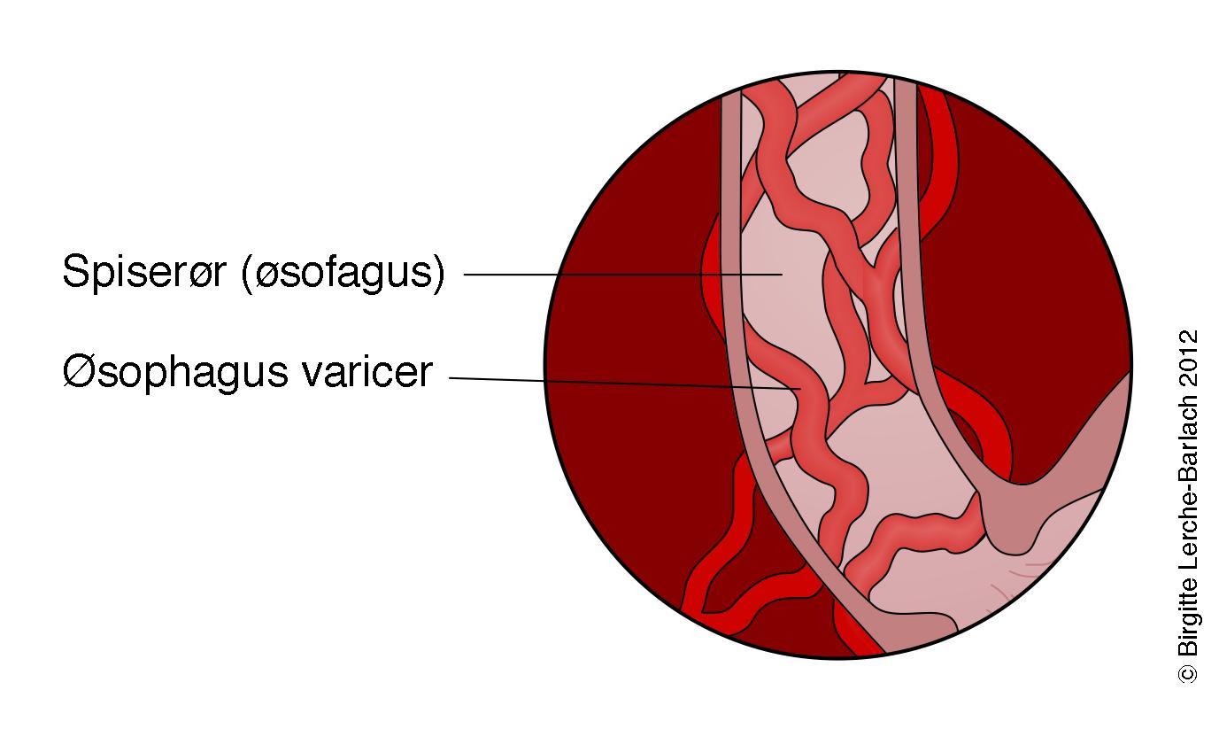 sygdomme i spiserøret