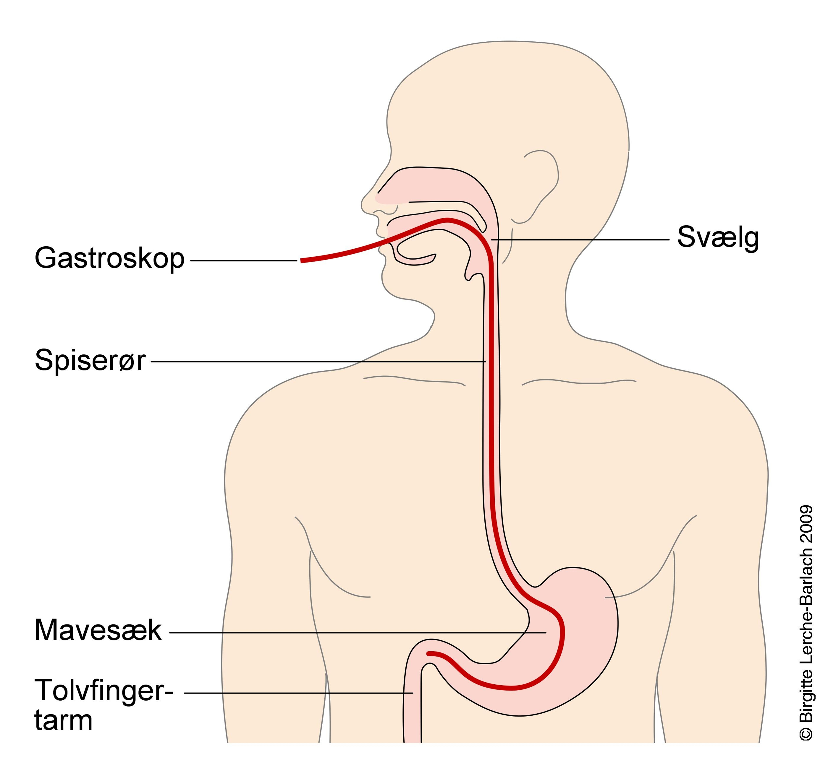 borger patienthaandbogen mave og tarm sygdomme spiseroer gastrooesofageal reflukssygdom