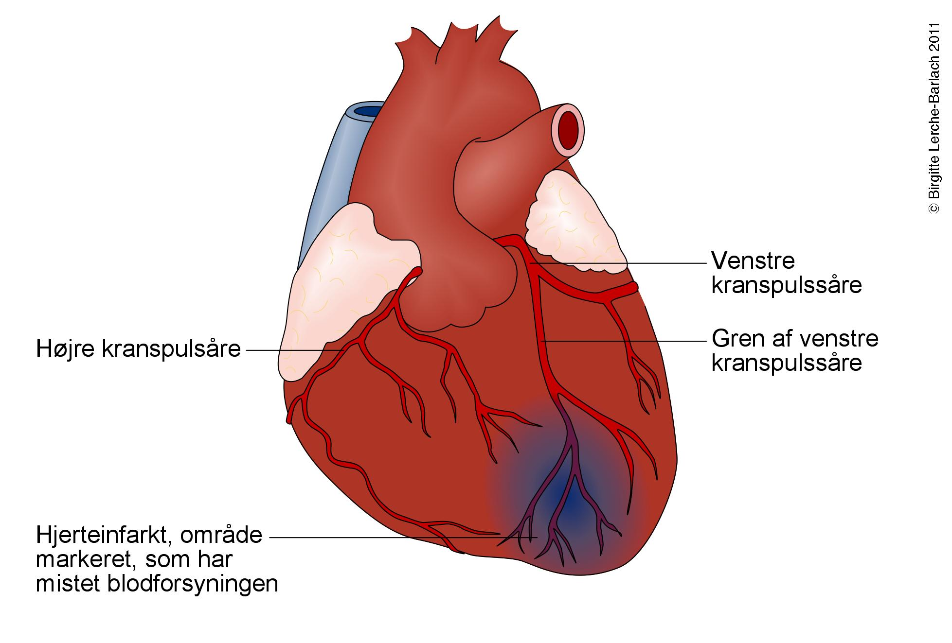stress hjerte symptomer