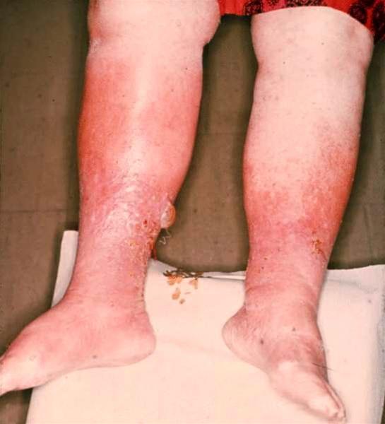 infektion i kroppen