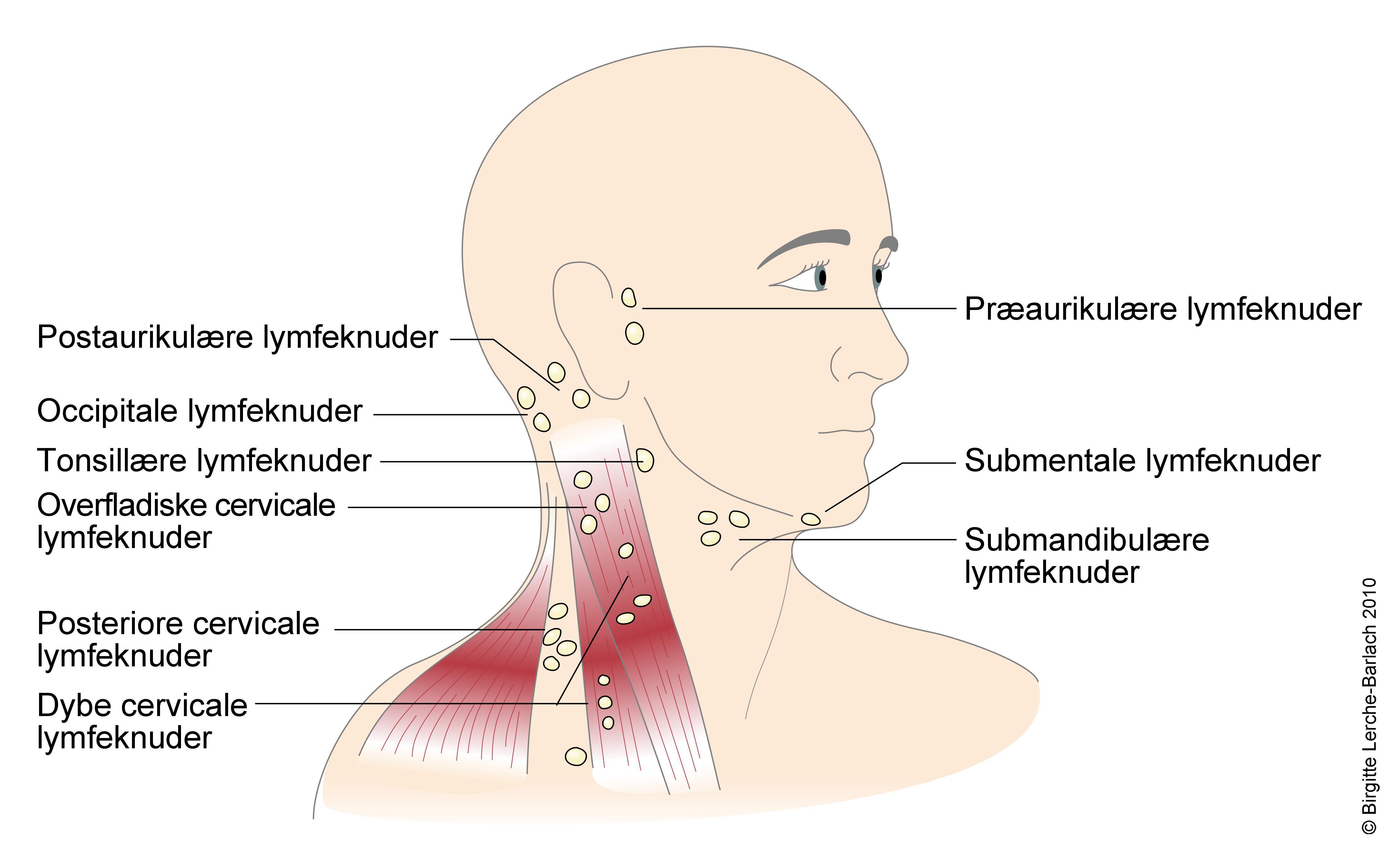 Halsen kirtler i Fjernelse af