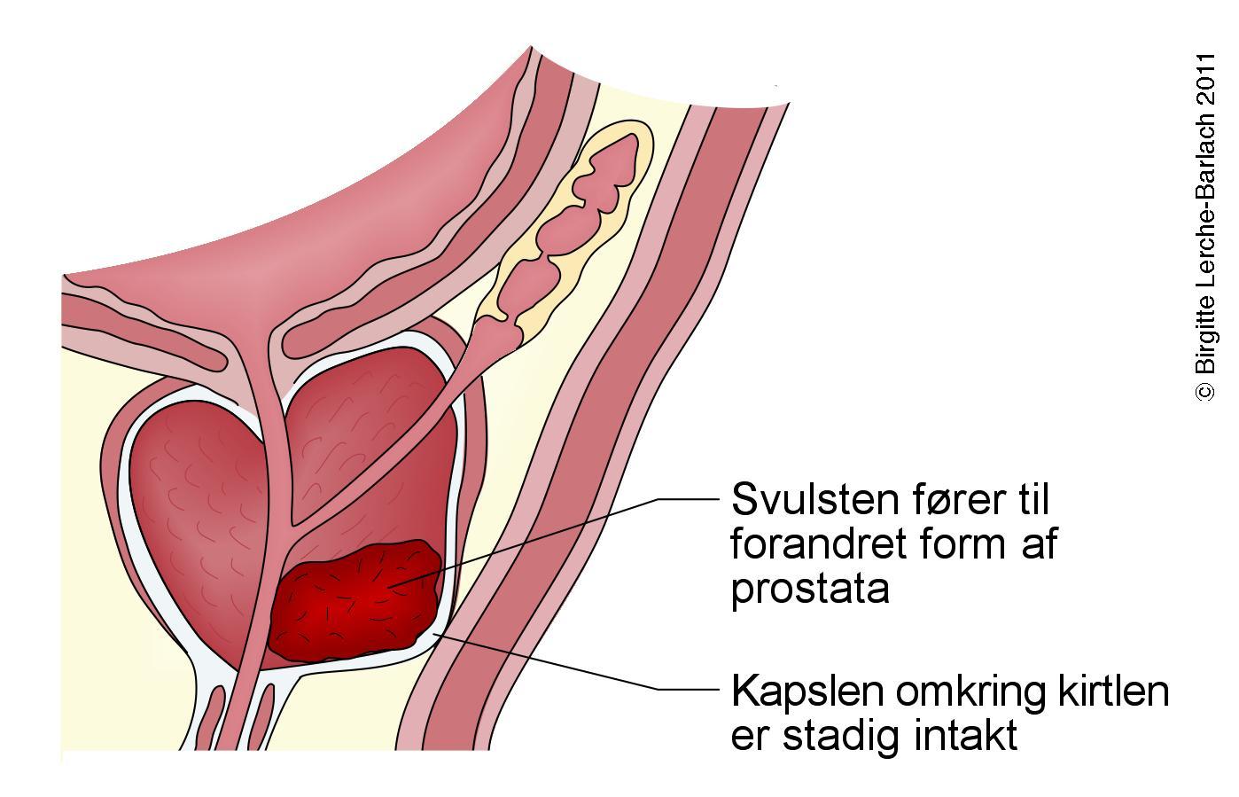 prostata dk