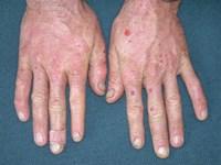 vesikler på huden